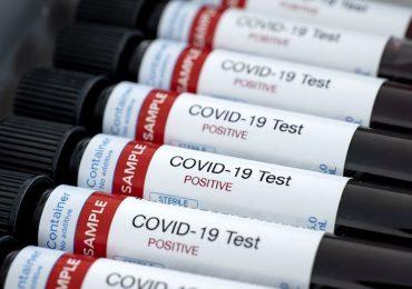 COVID-19: 236 casos activos en Pudahuel, 161 en Cerro Navia y un total de 41.428 en el país