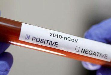 $493.581.200 se destinarán para reforzar la atención pública por coronavirus en Pudahuel
