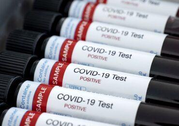 COVID-19: Pudahuel llega a los 339 casos activos mientras que en Cerro Navia son 173 los contagios
